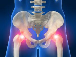 Симптомы болезни - боли в тазовых костях