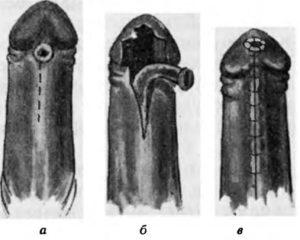 Надрыв уздечки полового органа