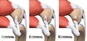 при вставании на колено жжение рядом в мышце
