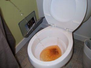 больно ходить в туалет по большому