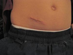 Шрам от аппендицита