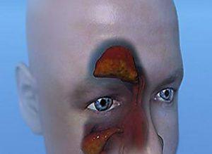 Острое воспаление лобной пазухи