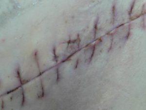 Открылась рана после снятия швов