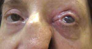 Невралгии глазной локализации