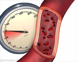 Гипертония: Высокое артериальное давление и инсульт