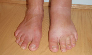 Сильные отеки ног