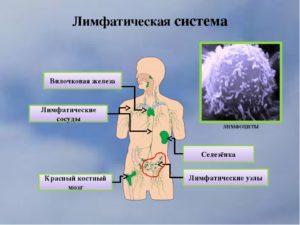 Заболевания лимфатической системы