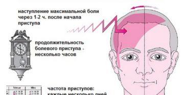 Приступы мигрени появляются каждый день?