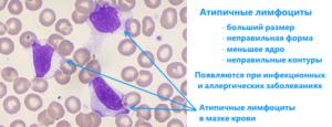 Атипичные формы лимфоцитов у ребенка