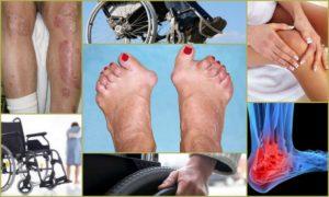 Предотвращение нетрудоспособности при ревматоидном артрите