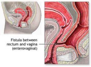 ректо-вагинальный свищ