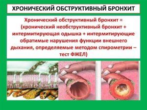 Бронхит хронический обструктивный