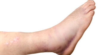 Симптомы болезней у женщин – Лодыжки, Ступни