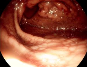 Гастрит (гастродуоденит) хронический