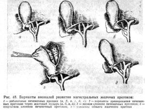 Врожденные аномалии развития желчевыводящих протоков