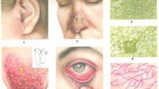 Грибковые заболевания легких (микозы)