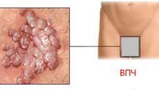 Проблемы и повреждения половых органах у мужчин