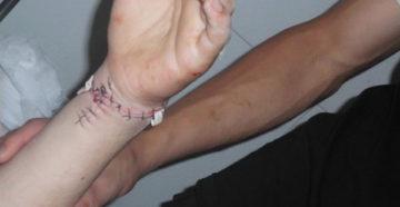 Перерезаны вены и сухожилия на руке