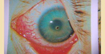 Контузии органа зрения (продолжение...)