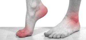 Симптомы болезни - боли в голеностопах