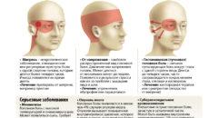 Головная боль: в  каких случаях должна насторожить?