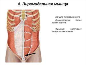 После тренировки опухла пирамидальная мышца живота