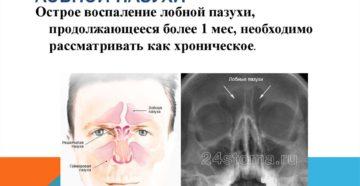 Хроническое воспаление лобной пазухи