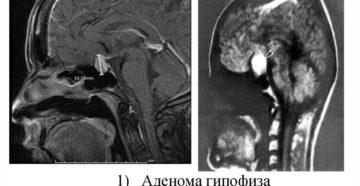 МРТ гипофиза при повышенном пролактине