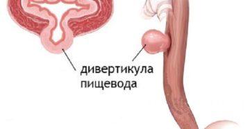Дивертикулы пищевода