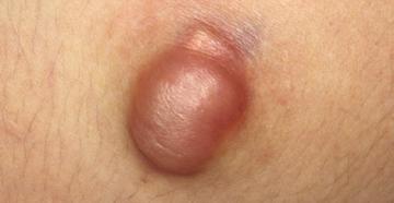 Кожные заболевания: кисты, узелки и опухоли