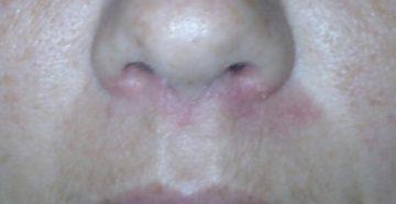 сыпь на крыльях носа и вокруг глаз