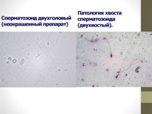 Спермограмма. патология хвоста.
