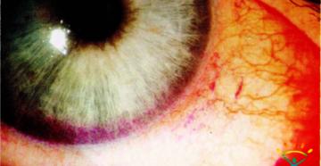 Роговично-конъюнктивальный ксероз (синдром «сухого» глаза)