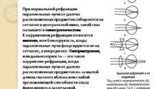 Хирургические способы коррекции аномалий рефракции (продолжение...)