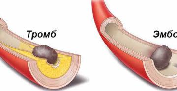 Тромбозы и эмболии