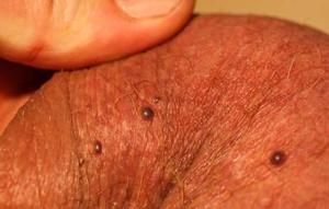 Кровяные точки на яичках