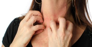 Как снять стресс и симптомы аллергии