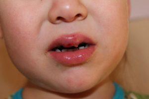 Волдырь на губе, у ребенка 2-х лет