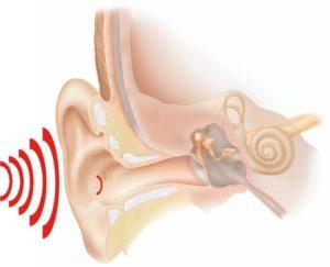 После гриппа правое ухо остро реагирует на звуки и громкую речь.