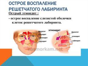 Острое воспаление (клеток, ячеек) решетчатого лабиринта