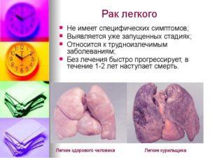 Рак легких у мужчин