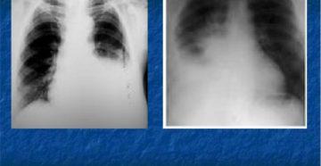 Плеврит экссудативный (парапневмонический)