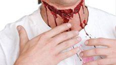 Травмы  гортани и трахеи