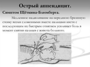 Острый аппендицит (продолжение...)