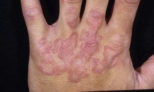 Кожные грибковые инфекции