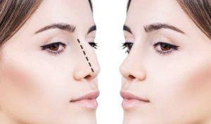 Косметические процедуры: изменение формы носа