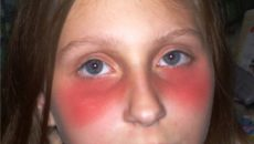 ярко-красное лицо и отек у девочки 2 года