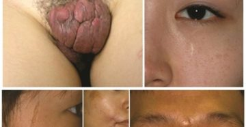 неудачная лабиопластика