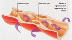 Болезни артерий, вен и лимфатических сосудов