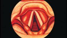 Подскладочный ларингит (ложный круп)